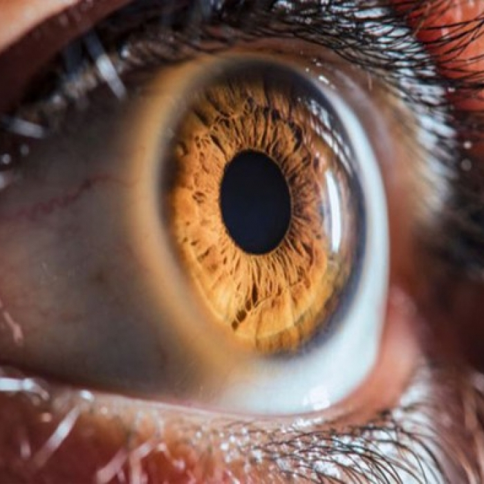 How Medical Cannabis can help with Macular Degeneration (MD)